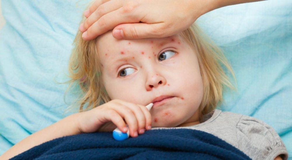 În plină epidemie de rujeolă, România rămâne fără vaccinurile ROR