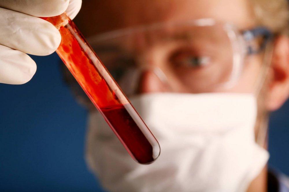 Testul care ne poate spune dacă suntem expuși riscului de a dezvolta o boală cronică